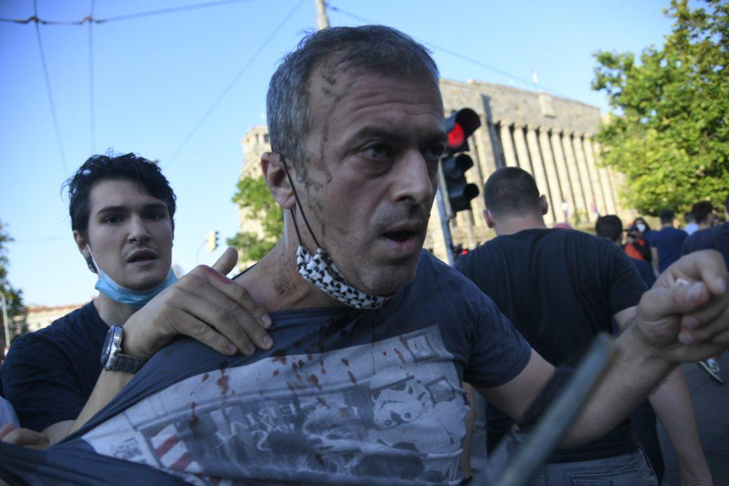 Nećeš nam ukrasti protest: Sergej Trifunović napadnut, otjerali ga sa skupa