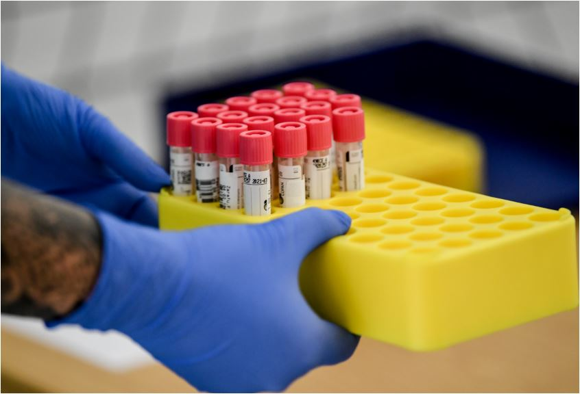 Na Kosovu još 124 slučaja koronavirusa